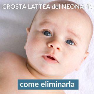 Crosta lattea del neonato: come eliminarla